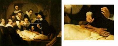14.1 Картина Рембранта Уроки анатомии