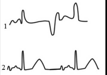2.4 Энцефалограмма